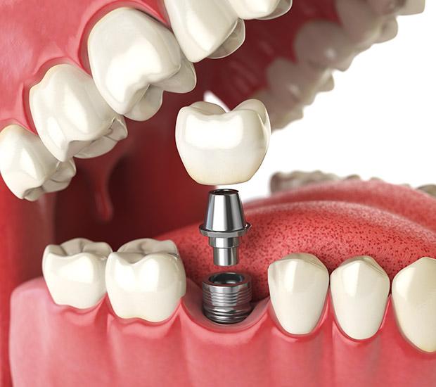 Brooklyn Will I Need a Bone Graft for Dental Implants