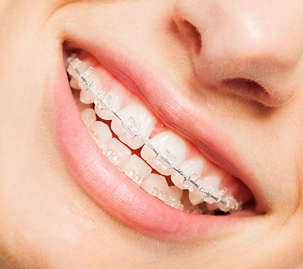 Brooklyn Clear Braces