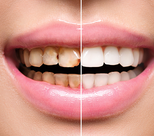 Brooklyn Dental Implant Restoration