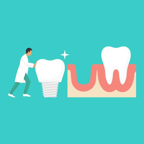 dental implants Brooklyn, NY