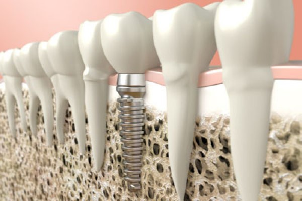 Dental Implants: When Is A Bone Graft Necessary?
