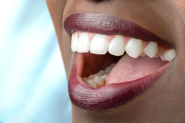 Full Mouth Reconstruction: Dental Crowns To Improve Oral Health