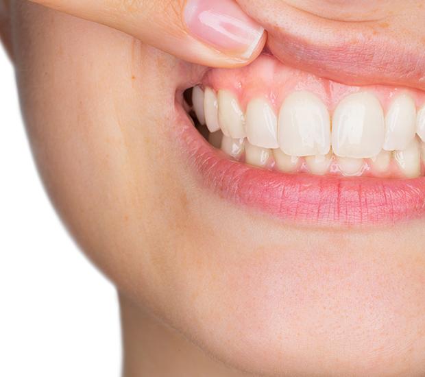 Brooklyn Gum Disease